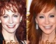Reba McEntire, Ageless Fame and Beauty